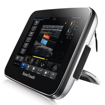 Chison SonoTouch 20 Tablet Ultrasound